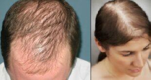 İlk aşamada saç bir ay boyunca yaklaşık bir cm uzar. Bu 1 ay saç döngüsünün en uzun aşamasıdır. Bu aydan sonra saç, üç hafta dinlenmeye çekilir. Üçüncü haftadan sonra ise, son evre olan dökülme evresi başlar. Bu evrede saçınızı taramanız, yıkamanız ile beraber o saçlar düşecektir. İşte bu döngü olduğu için, günlük ortalama 100 tel saç dökülmesi normaldir. Bunda korkacak bir şey yok. Ama bazen, bu durum sizler için tehlikeli bir hal alabilir. Saç döngüsü adını verdiğimiz süreç dışında, bütün bir yıl elinizi saçınıza attığınızda elinize çok sayıda saç teli geliyorsa tehlike çanları sizin için çalmaya başlamış demektir. Bu, bir sağlık sorunu olan saç dökülmesi işaretidir.
